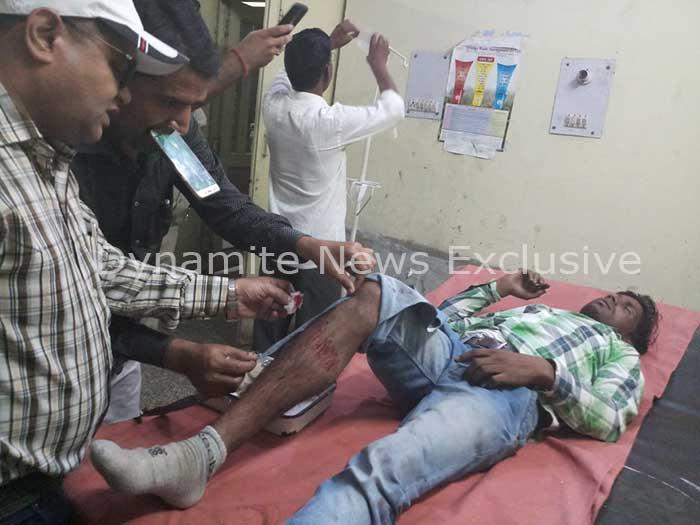 पुलिस मुठभेड़ के बाद उपचाराधीन घायल बदमाश