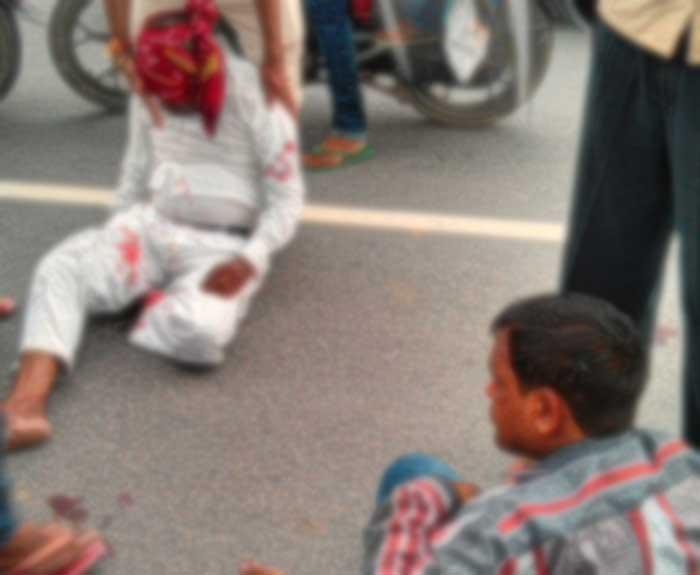 घटना में घायल व्यक्ति