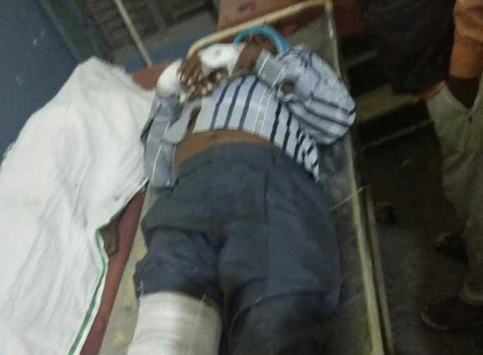 हादसे में घायलों का अस्पताल में इलाज जारी, एक ने तोड़ा दम