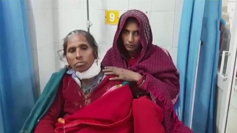 अस्पताल में घायल भर्ती महिला