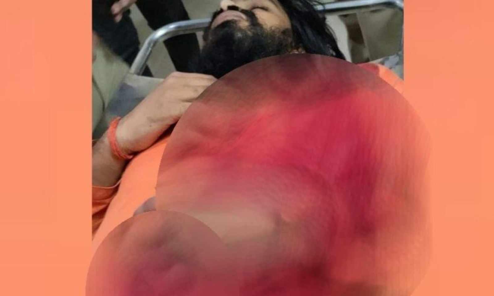 घायल पुजारी के इलाज के लखनऊ रैफर किया जा चुका है (फाइल फोटो)